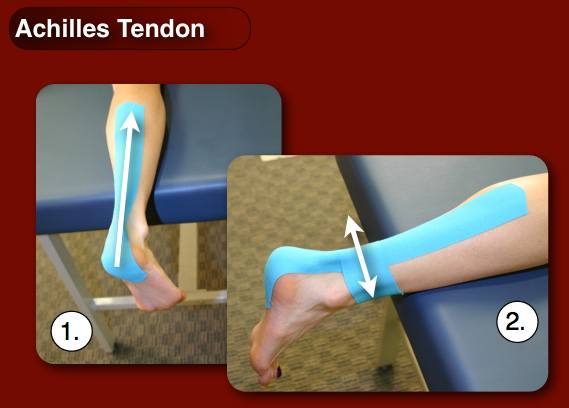 Achilles-taping